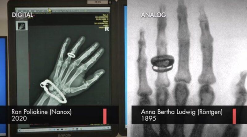 NNOXのARC装置でのレントゲン写真